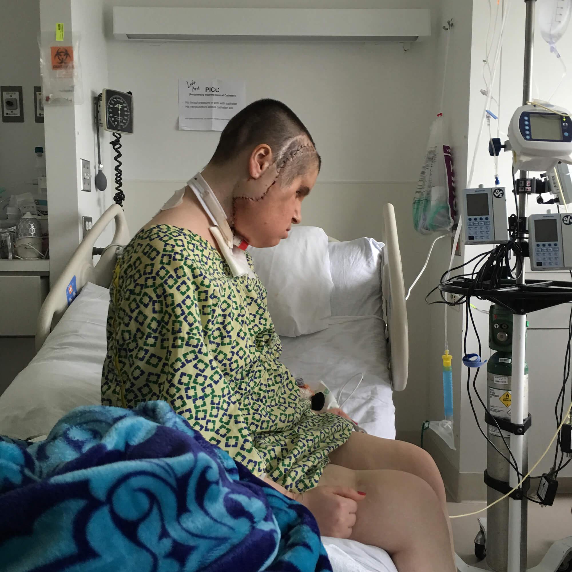 Steber_Katie-after-face-transplant